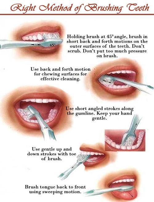 Clean your teeth - fss-dental